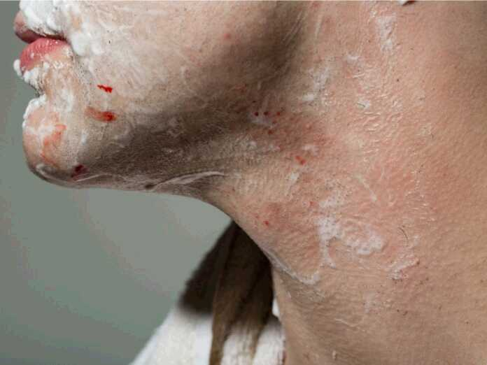 stop bleeding from a shaving cut